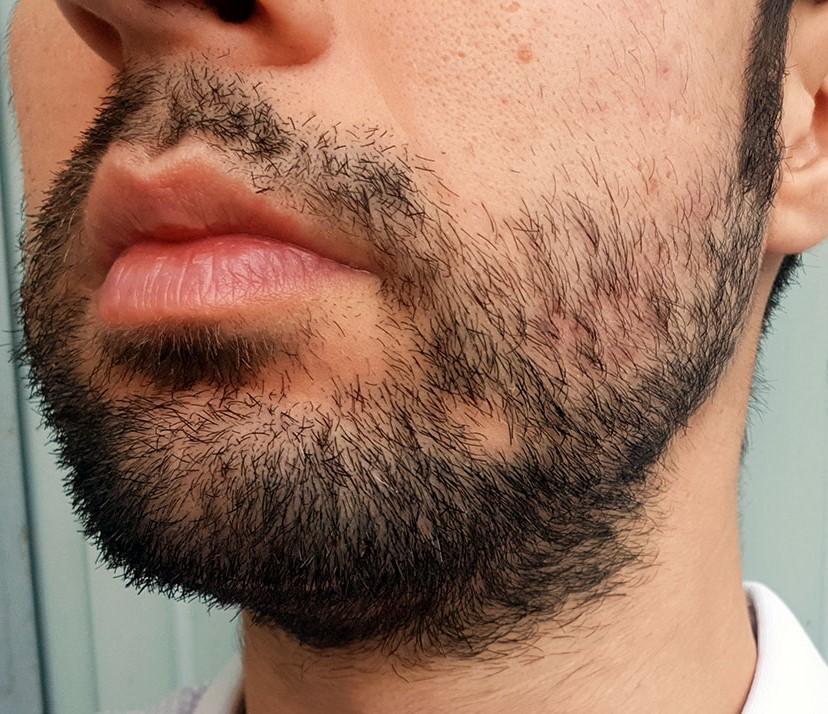 Лечение алопеции бороды