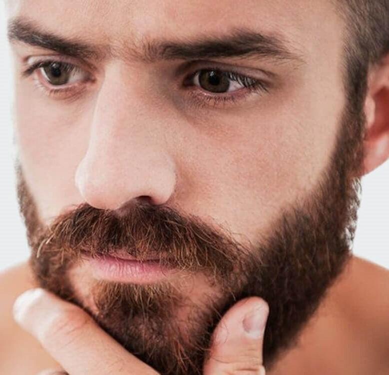 Лечение очаговой алопеции у мужчин на бороде