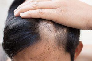 гнездная алопеция у женщин лечение