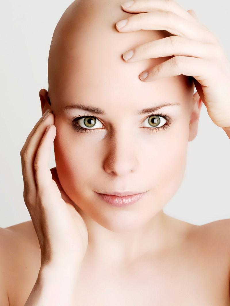 тотальная алопеция у женщин лечение