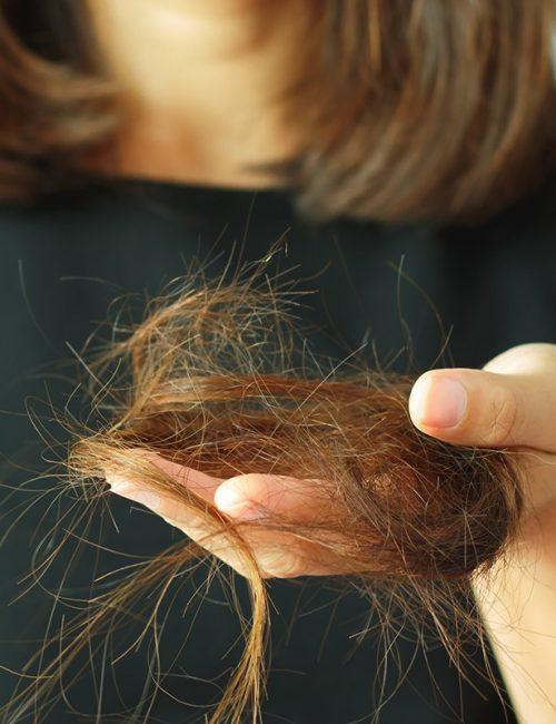сильное выпадение волос у женщин лечение