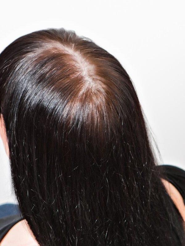 женская алопеция лечение